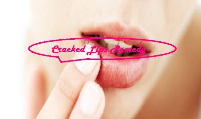 7 Cracked/Chapped Lips Remedy