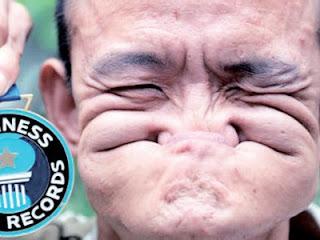 Jika dilihat sekali imbas, memek muka Shuquan ini kelihatan seperti ...