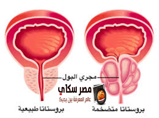 البروستاتا وأمراض الشرج