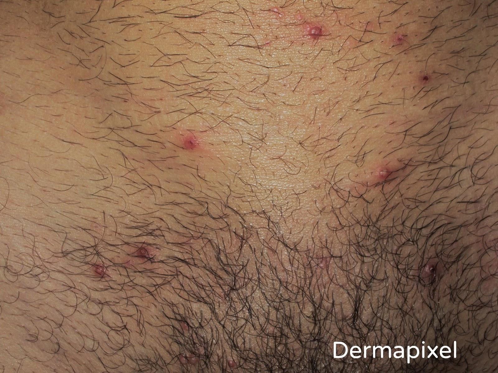Diprospan a atopicheskom la dermatitis