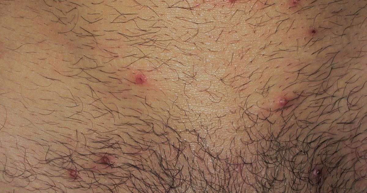 Dermapixel los moluscos en adultos no son de la piscina for Piscina y candidiasis