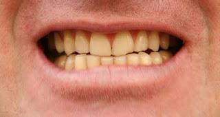 Mengatasi Gigi Yang Kuning Secara Alami