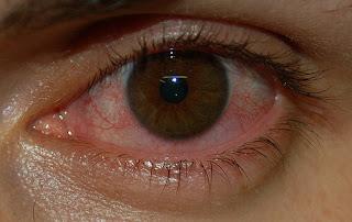 Tips Mudah Menyembuhkan Mata Merah