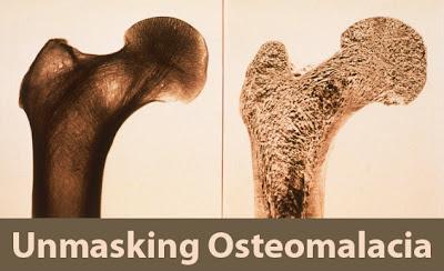 osteomalacia, Skeleton