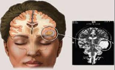 Cara Alami Mengobati Kanker Otak