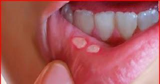 petua merawat ulser mulut