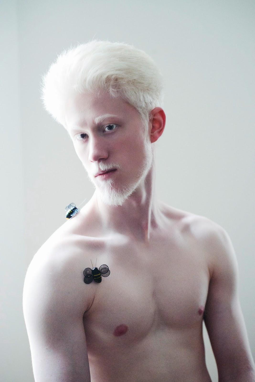 Acıtmayız :DDDDD Porn Pics Albinos love BBW