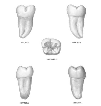Tutorial Anatomía Cabeza y Cuello: Tercer Molar Inferior.