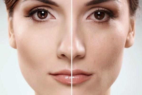 Tips Alami Mencegah Keriput Pada Wajah
