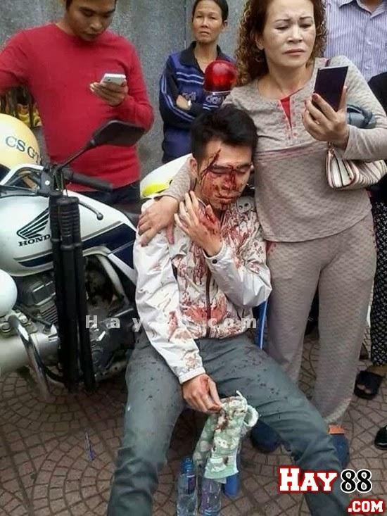 141 bị tố vụt chảy máu đầu thanh niên tại chốt - 2
