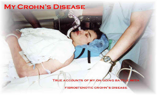 My Crohn's Disease