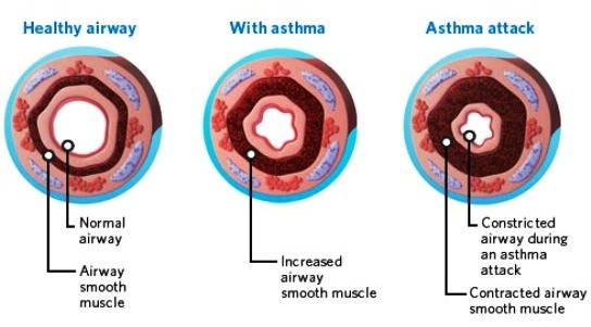 Airways During Asthma Attack
