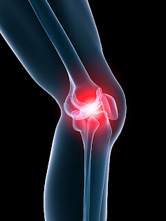 How to strap a knee and treat Knee Pain and Meniscus Tears