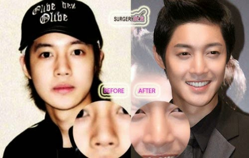 Korean Actor Plastic Surgery