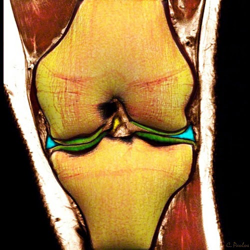 Coronal Color MRI of the Knee Joint showing the Meniscus