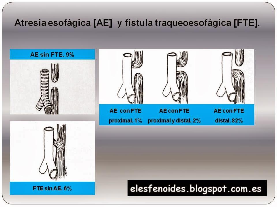 El esfenoides atresia esof gica y f stula for Clasificacion del marmol