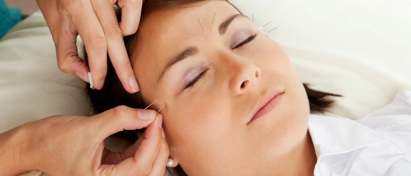 Manfaat Akupuntur Untuk Pelangsingan Badan dan mempercantik wajah