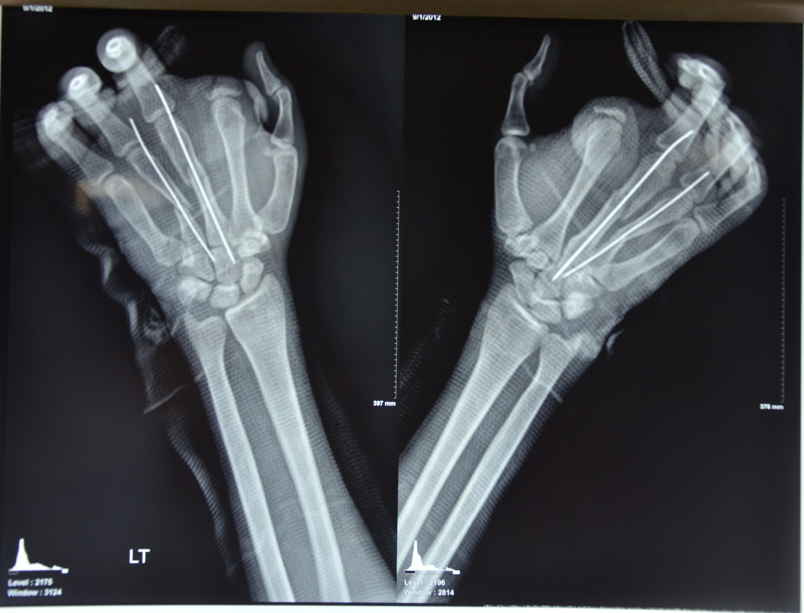 MAJOR CRUSH INJURY LEFT HAND WITH MULTIPLE METACARPAL FRACTURES ...