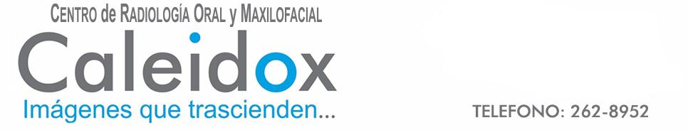 Caleidox