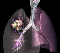 Gambar kanker paru-paru