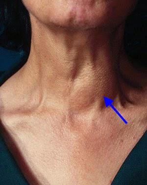 http://infoprodukgreenworld.blogspot.com/2015/04/cara-mengobati-tumor-jinak-di-leher.html