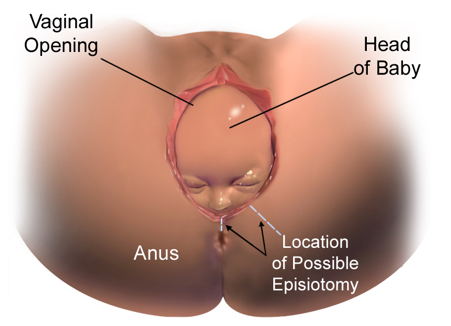 Episiotomi semasa proses kelahiran