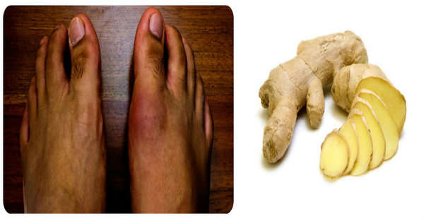 vitamins that cause uric acid what does gout in toes feel like gout diet chinese medicine
