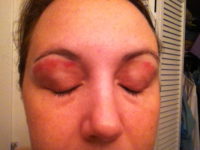 Another Online Mom Ouch Eyebrow Wax Burn Or Reaction Beauty