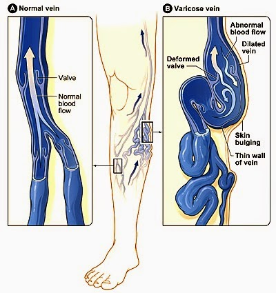 masalah urat kaki timbul
