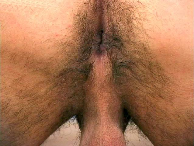 Natural anal bleaching