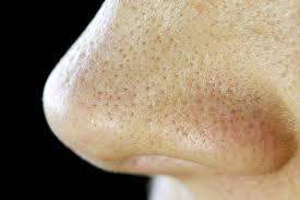 atasi masalah liang pori