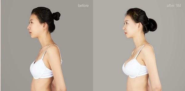 фото маммопластики до и после
