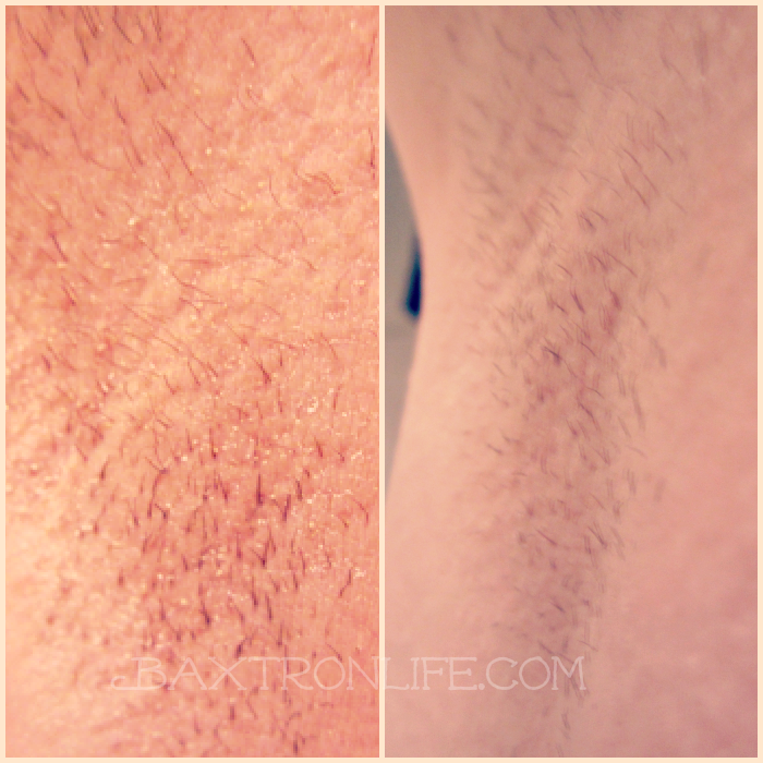 Coupon code tria laser hair removal