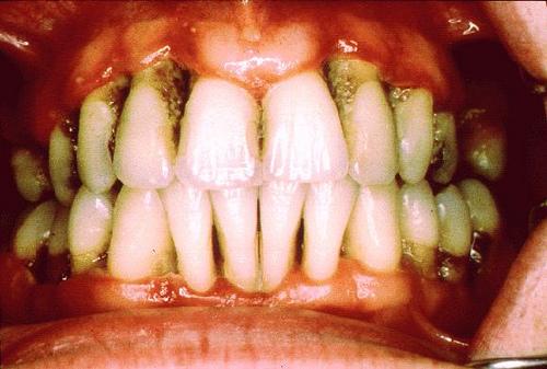 bahaya rokok buat mulut