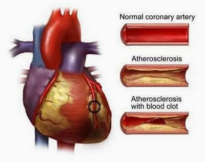 Gambar Aliran Darah Jantung