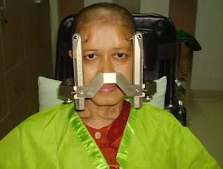 Dewi Krisnawati, 17 Tahun Hidup Bersama Lima Kanker