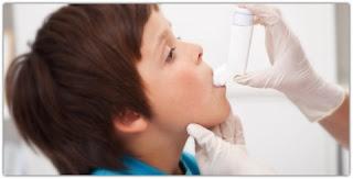 Cara Mengobati Penyakit Asma atau sesak nafas Secara Alami