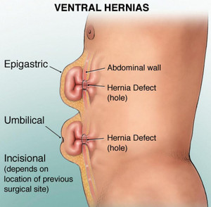 ventral hernia definition symptoms pictures repair video  : hernia locations diagram - findchart.co