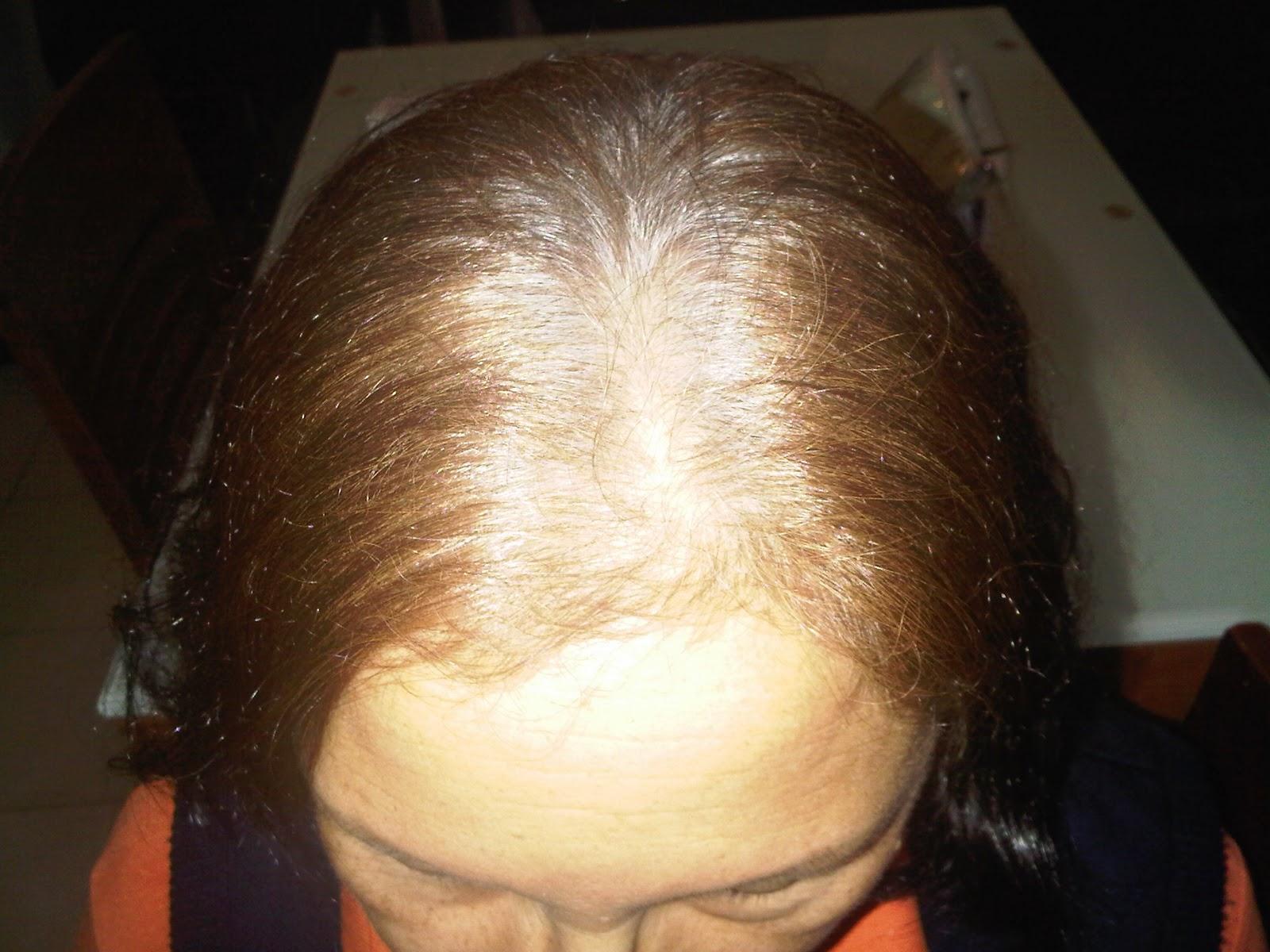 La máscara para los cabellos con la sal de la caída de los cabello