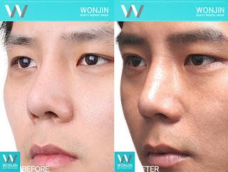 foto sebelum dan sesudah operasi plastik hidung-5