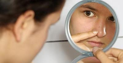 Lucha anti-acné