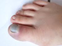 swollen_bruise_thumb