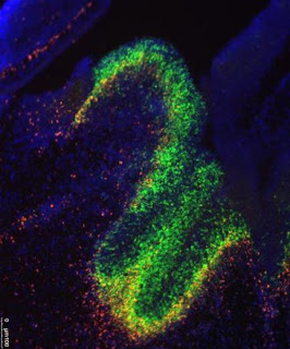 UCSF researchers have uncovered a role in brain development and in neurological disease for little appreciated molecules called long noncoding RNA. In this image, fluorescent dyes track the presence of the RNA molecules and the genes they affect in the developing mouse brain.