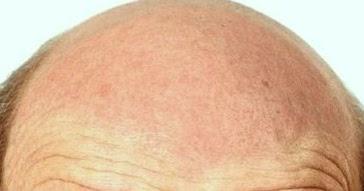 haarausfall info raum alopezie haarausfall