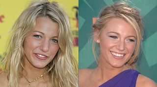 Blake Lively  on Blake Lively Before After Plastic Surgery Png