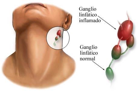 Duele los músculos del cuello con es izquierda el derecho