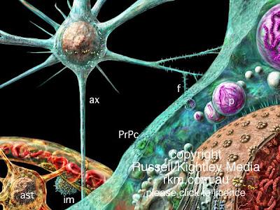 阿茲海默症新疫苗 - 阿茲海默症新疫苗最快2年內問世