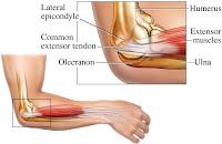 Tennis Elbow | Golfers Elbow | Epicondylitis | Treatment of Elbow Pain