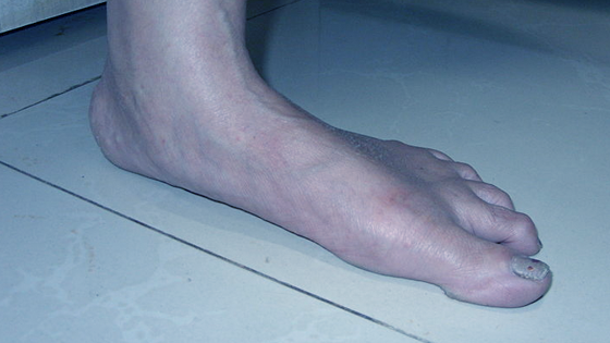 Flat Feet Or Fallen Arches Refers To A Condition Of The Foot In Which The Arch Of The Foot Collapses While Standing Or In Some Extreme Cases
