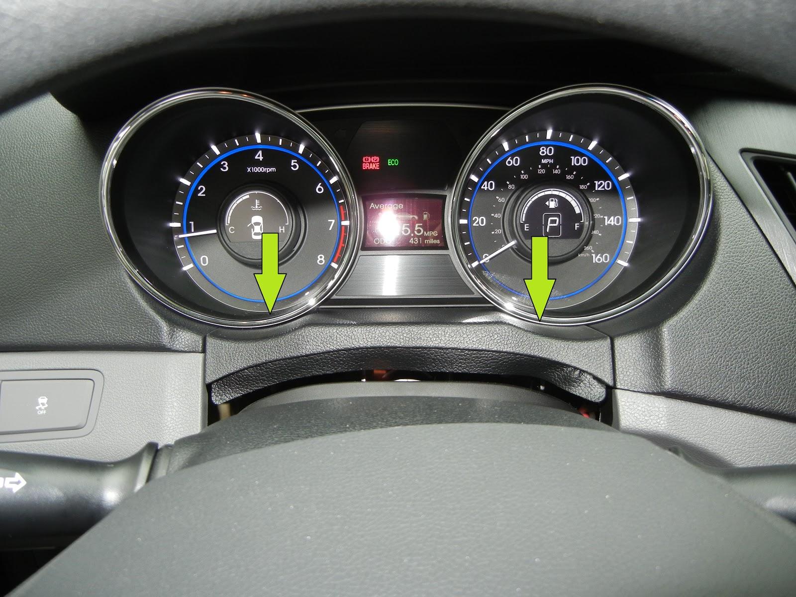 Hyundai Elantra: Removal